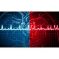 ECG Mystery Solved