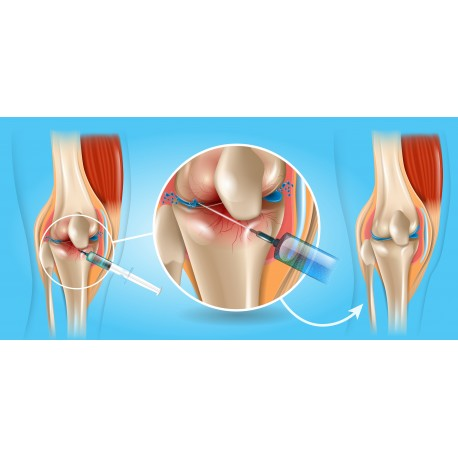Joint Injections & Minor Office Surgical procedures